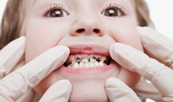 Mulailah Kebiasaan Kesehatan yang Baik pada Anak dengan Gigi mereka